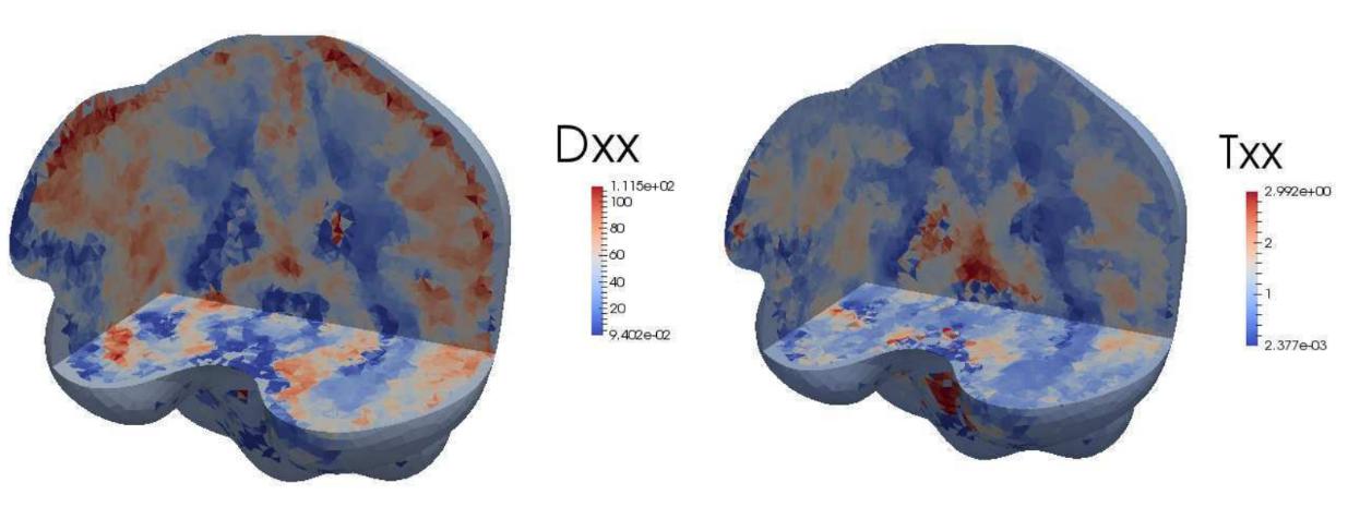 La matematica in aiuto del medico per personalizzare le cure dei tumori al cervello